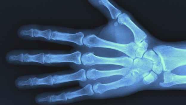 New X-ray machine at Teddington Memorial Hospital